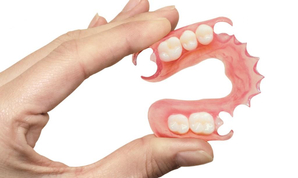 Материал для зубных протезов: какой лучше?