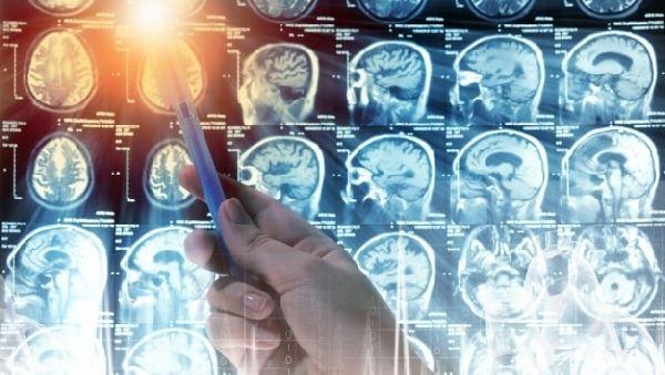 5 мутаций в ответе за рак мозга