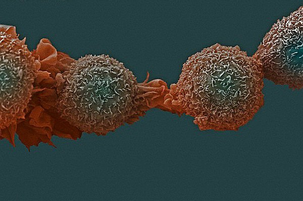 Как уберечь себя от рака