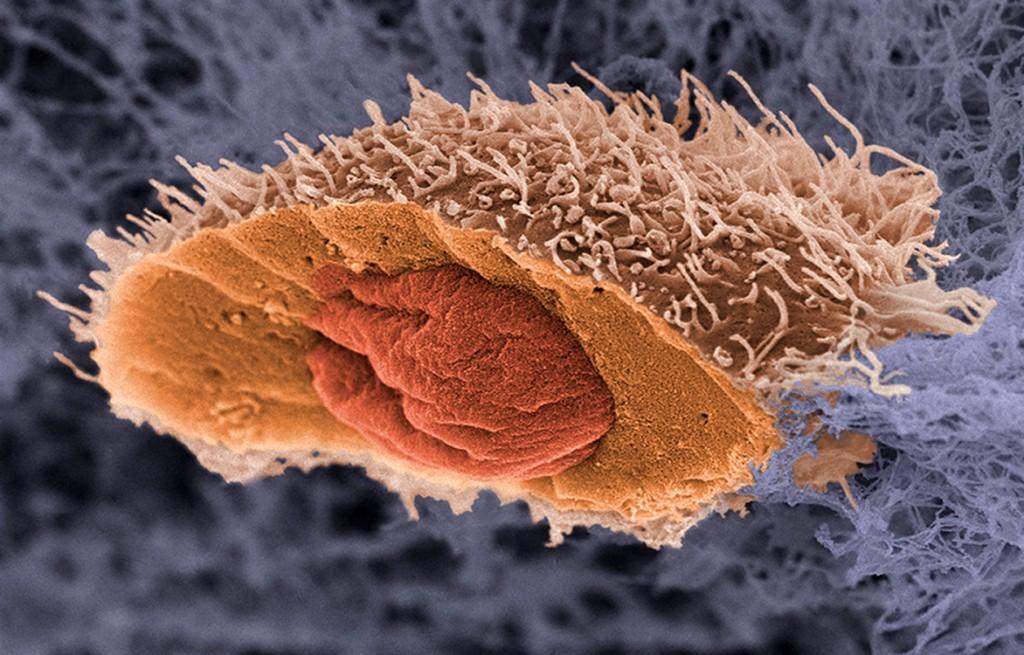 Новый анализ предскажет, насколько смертелен рак