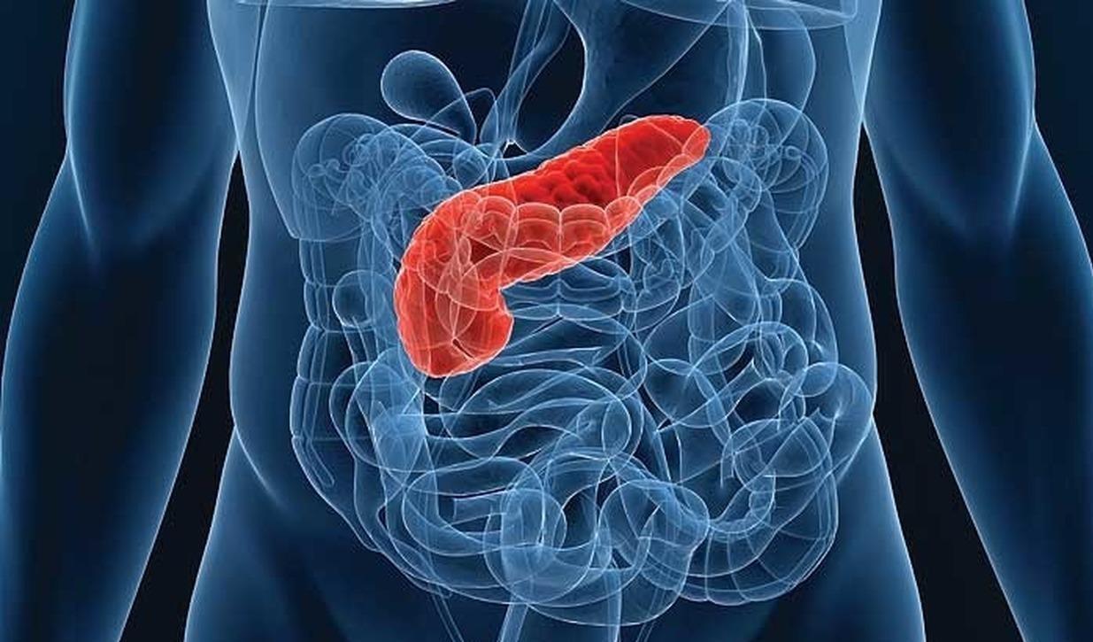 Газировка провоцирует рак поджелудочной железы