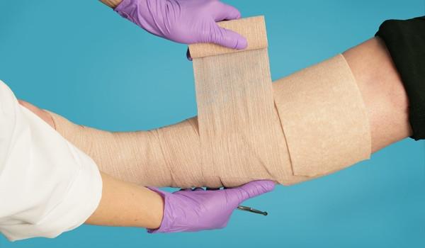 Лимфостаз после РМЭ. Методы профилактики и лечения