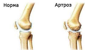 Артроз и его симптомы