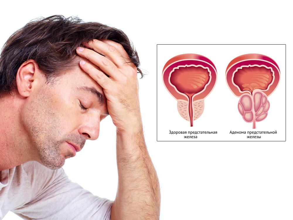 Профилактика, лечение простатита и аденомы предстательной железы.
