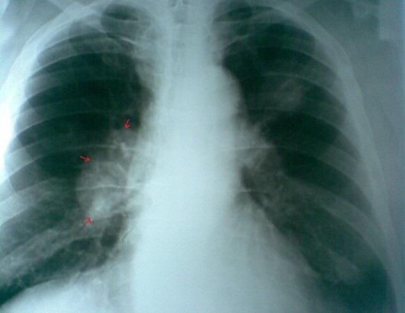 Лучший способ ранней диагностики рака легких
