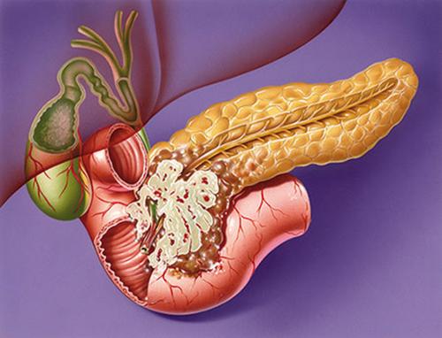 Курение и алкоголь грозят ранним раком поджелудочной железы