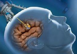 Иногда побочные эффекты лечения рака оказываются полезными…