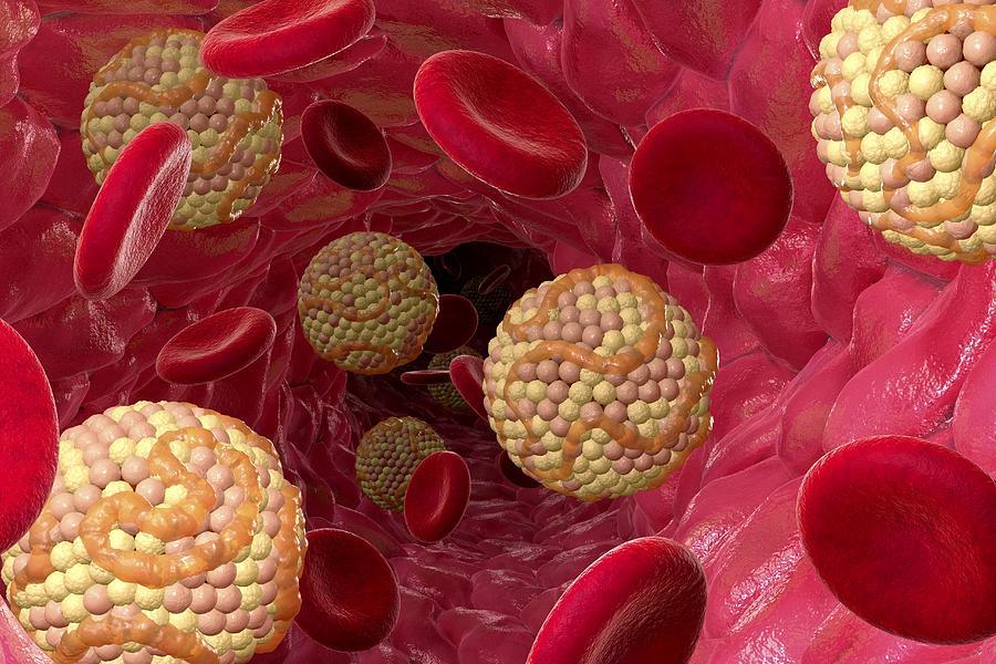 Понижение уровня холестерина снижает риск рака