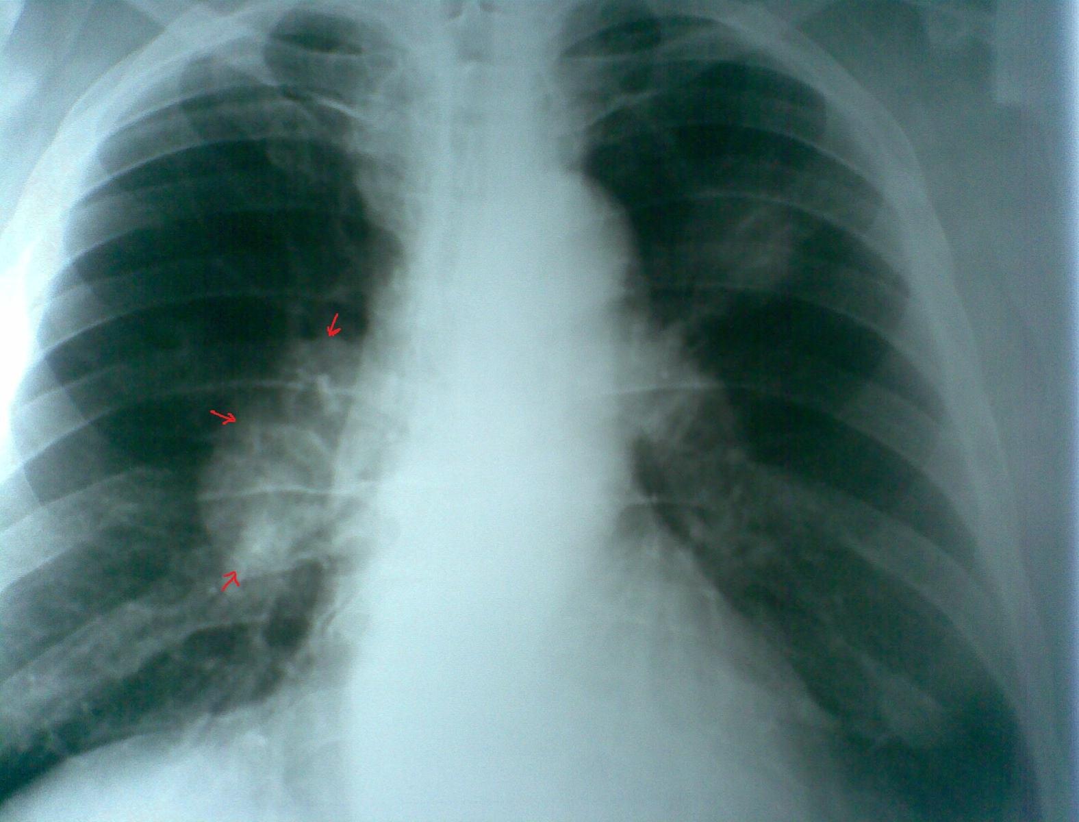 Обследование легких на рак нужно начинать с 35 лет