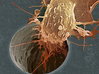 Могут ли продукты питания вызвать раковые заболевания