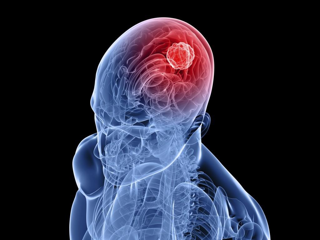 Опухоль головного мозга чаще возникает у людей, страдающих ожирением