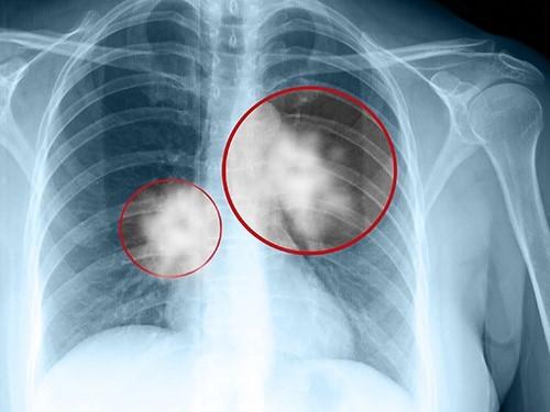 Препарат против лейкоза справится с раком легкого