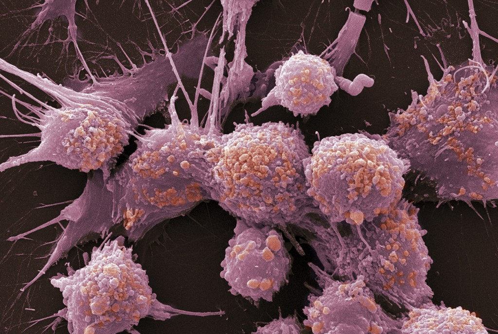 Метастазирование рака молочной железы остановят два гена