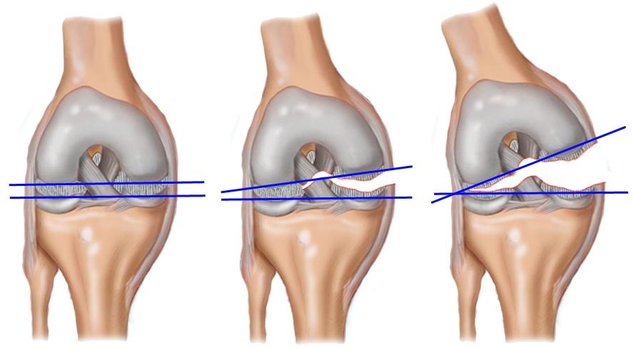 Как лечить разрыв мениска коленного сустава? | Новости онкологии