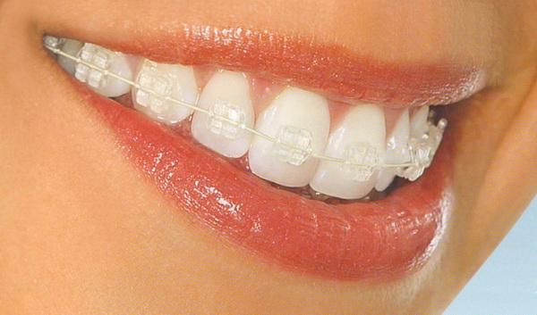 Ортодонт. Какими бывают брекеты?