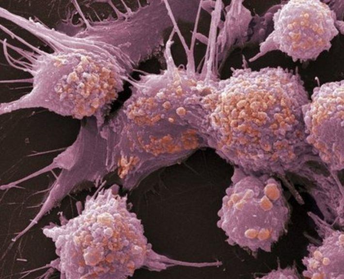Ранние симптомы рака простаты: поймать и уничтожить!