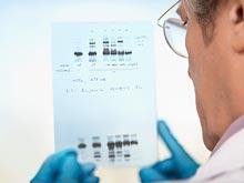 Генетики обнаружили у «ракового гена» BRCA1 неожиданное свойство