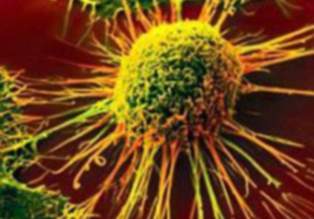 Раковые заболевания – следствие индустриализации