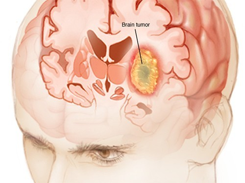 У людей, перенесших ветрянку, реже развиваются опухоли мозга