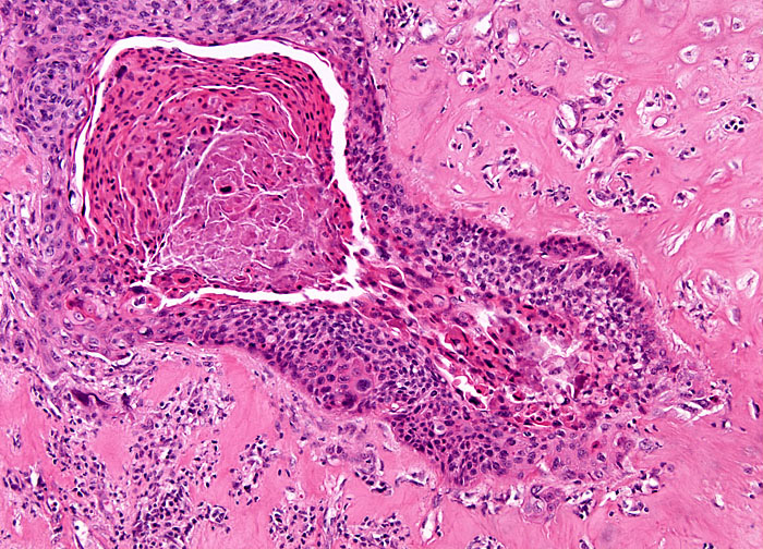 Исход рака гортани можно предсказать заранее