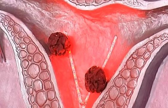 Рак шейки матки: диагностика и лечение