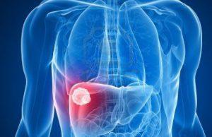 Новое слово в лечении рака печени микросферами