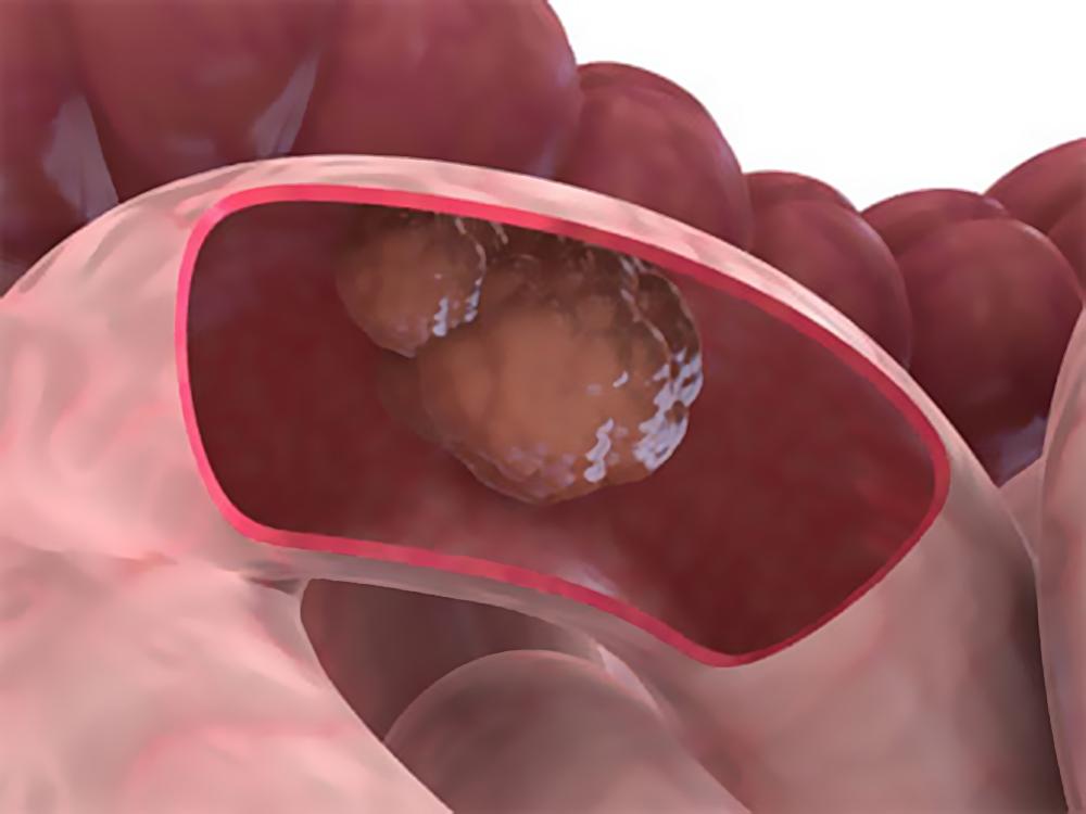Выживаемость больных раком кишечника зависит от их социального статуса