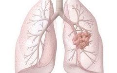 Обнаружен возможный способ борьбы с раком легких с помощью иммунной терапии