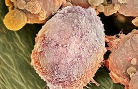 Рак носоглотки раскрывает свои секреты