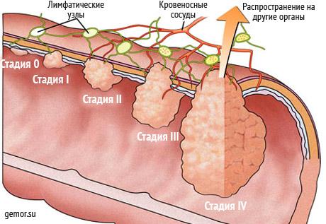 Лечение рака прямой кишки: выход есть