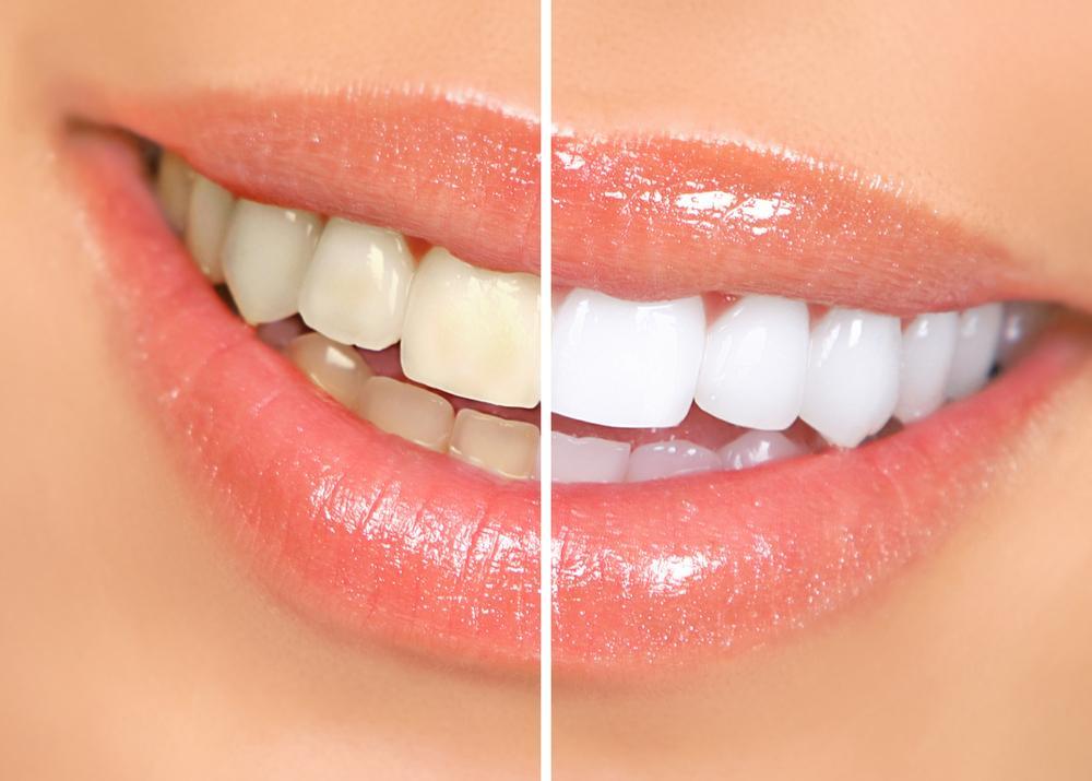Стоматология. Разновидности отбеливания зубов