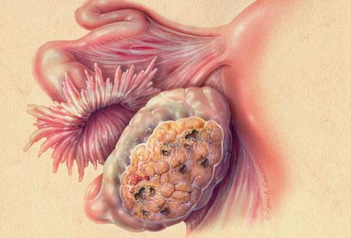Врачи побеждают рак яичников