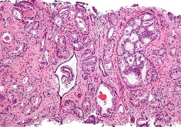 Ученые разработали метод терапии рака простаты, не поддающегося лечению