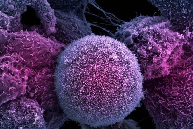 Американские ученые разработали новый метод уничтожения раковых клеток