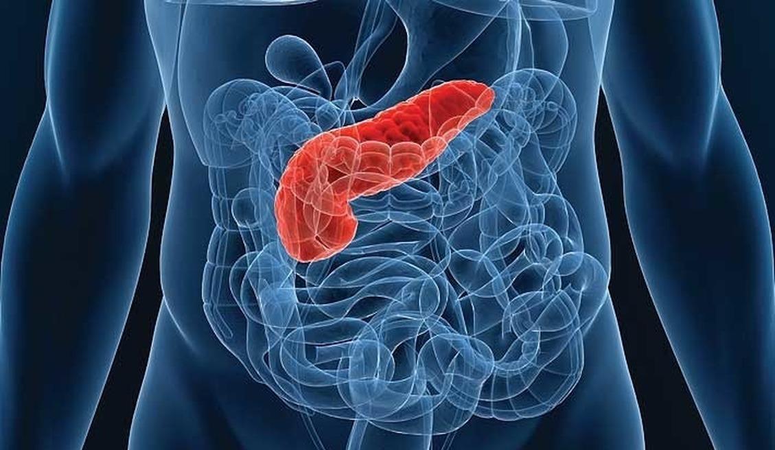 Первая группа крови снижает риск рака поджелудочной железы