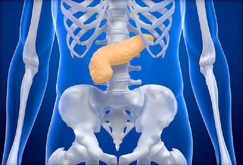 Выявлен ген, связанный с развитием рака поджелудочной железы
