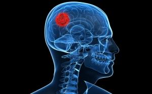 Люди с высшим образованием чаще страдают от опухолей мозга