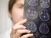 Опухоли головного мозга питаются не сахаром, а жирами