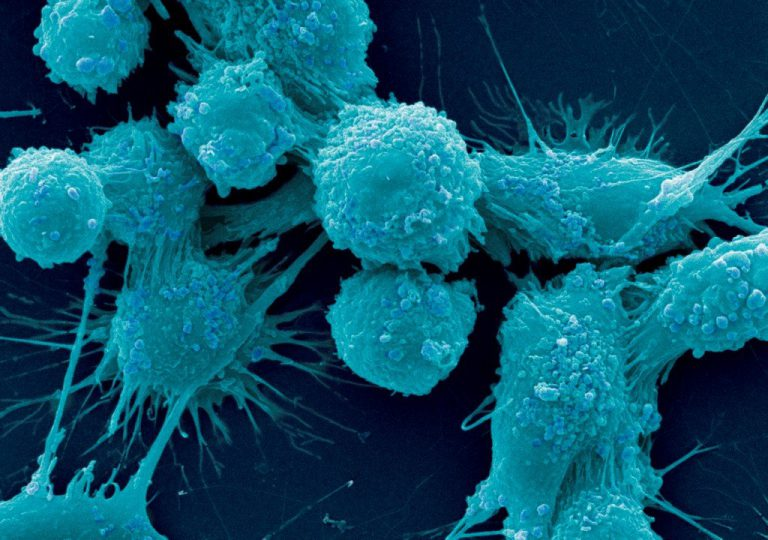 как влияют статины на организм человека