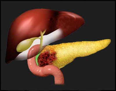 Создан вирус, помогающий бороться против рака поджелудочной железы