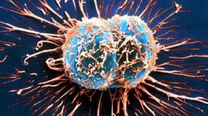 Скоро рак можно будет диагностировать по дыханию