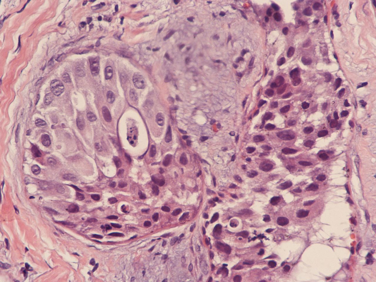 Опухоли грудной железы: не пропустите новообразование