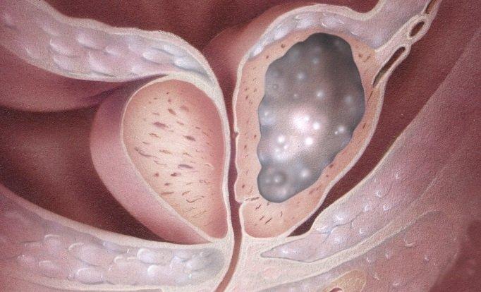 Рак предстательной железы поражает 50 летних мужчин