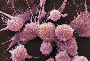 Симптомы рака простаты: когда стоит бить тревогу?