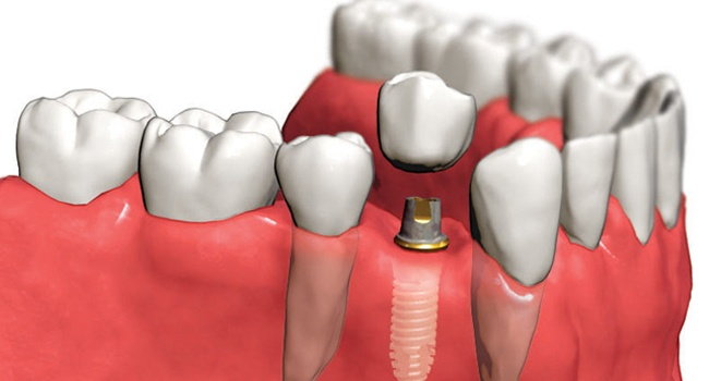 Надежная имплантация зубов качественными материалами