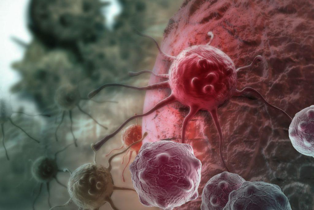 Онкологические заболевания в скором времени станут основной причиной смерти американцев