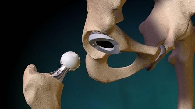Эндопротезирование тазобедренного сустава: протезы из металла, полиэтилена и керамики