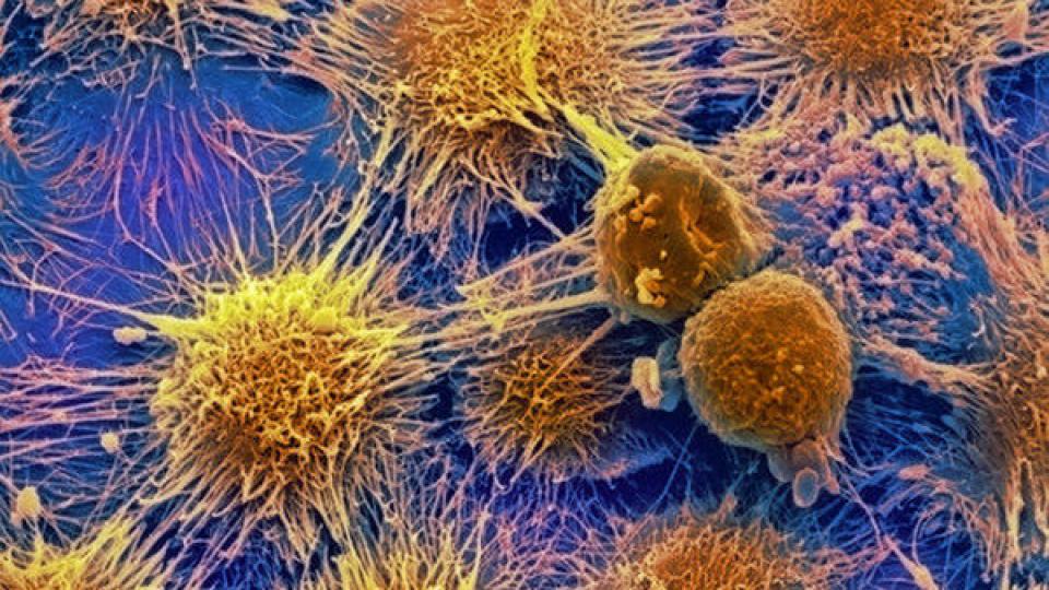 В 2030 году онкобольных будет вдвое больше