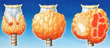 Щитовидная железа: горячие и холодные узлы