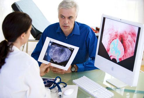 Препарат улучшает выживаемость у пациентов с раком простаты